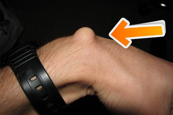 Ganglion cyst on dorsal side of wrist
