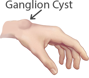 What is a ganglion cyst?