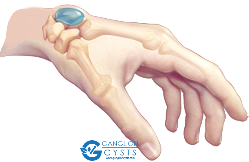 ganglion cyst on dorsal side of wrist